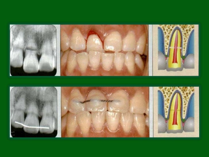 • Reposition, if displaced, the coronal segment of the tooth as  soon as possible. Check position radiographically.• Stabi...