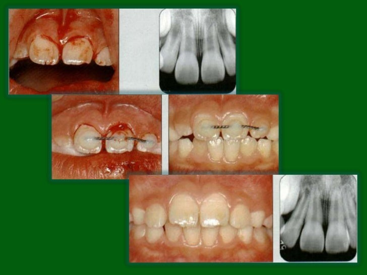 Lateral Luxation• N873.66• Definition: displacement of  the tooth in a direction other  than axially.• The periodontal lig...
