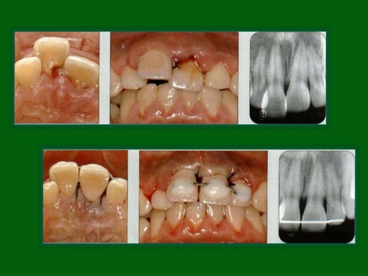 Diagnosis• Clinical findings reveal that the tooth appears to be shortened  or, in severe cases, it may appear missing.• T...