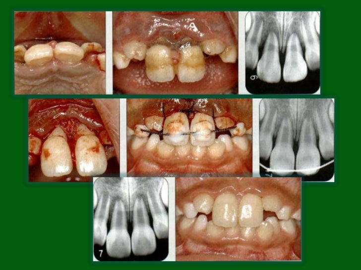 Treatment• Primary teeth: to prevent further injury to the developing  successor. Avulsed primary teeth should not be repl...