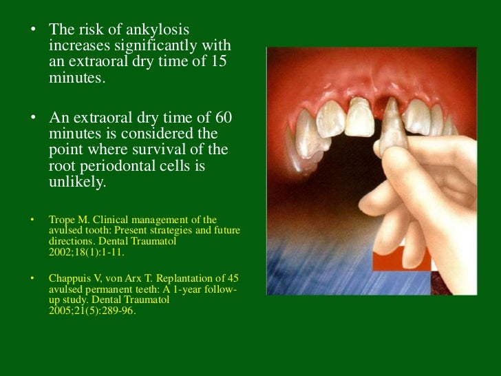 • Antibiotics; tetanus booster (5 years); chlorhexidine rinses;  analgesics• RCT for mature teeth: pulp removed after one ...