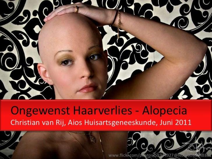 Ongewenst Haarverlies - AlopeciaChristian van Rij, Aios Huisartsgeneeskunde, Juni 2011                             www.fli...