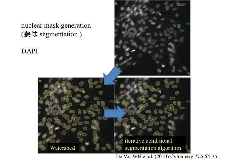 nuclear mask generation(要は segmentation )DAPI                             iterative conditional         Watershed         ...