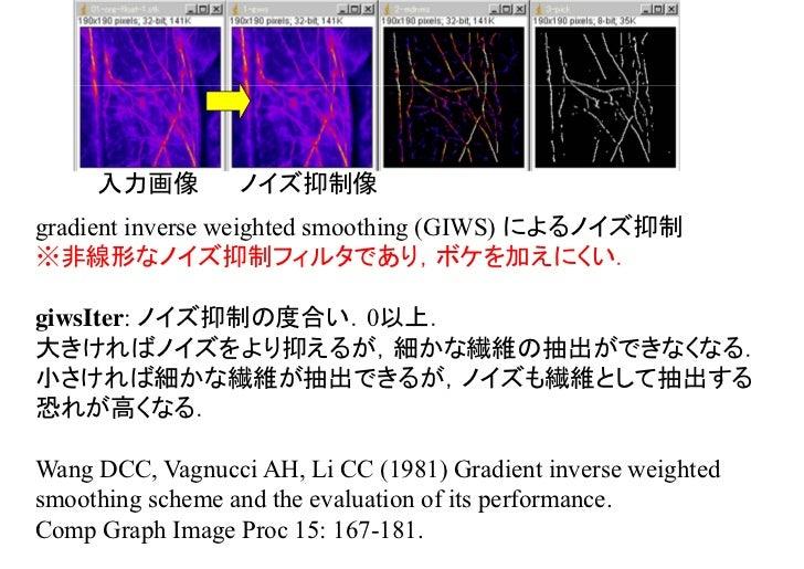 ノイズ抑制像 線分強調像MDNMS: multiple directional non-maximum suppression による線分強調.線分強調像における輝度は「線分らしさ」を示しており,入力画像の輝度ではない.mdnmsLen: 線分...
