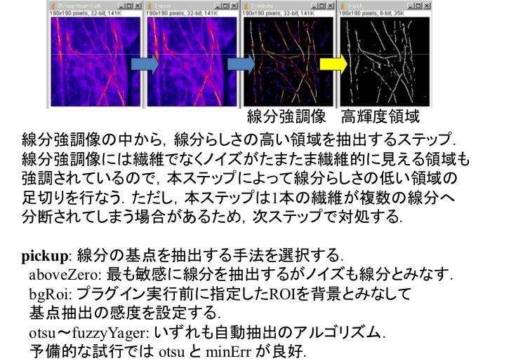 線分強調像 高輝度領域  線分領域高輝度領域を基点として,それに接続する線分強調像の非0領域を抽出するステップ.前ステップとあわせて,ヒステリシス特性のある二値化ともいえる.高輝度領域は前述のように繊維を分断する場合があるため,本ステップで,分...