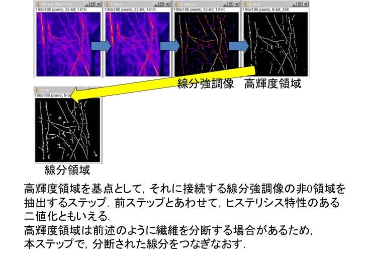 線分領域 暫定的な線分細線化.各領域を太さ1画素の線分になるまで細くする.このステップで得られる線分には,繊維構造をあらわす線分の他にノイズ由来の線分もある程度は含まれているため,次ステップ以降で対応する.