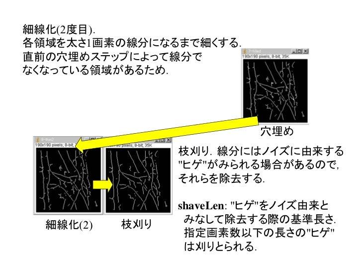 短い線分や孤立した点の除去.本ステップまでで線分抽出自体は完了する.delLen: 短い線分をノイズ由来とみなして除去する際の基準長さ.        指定した画素数以下の線分は消される.          枝刈り   最終的な線分