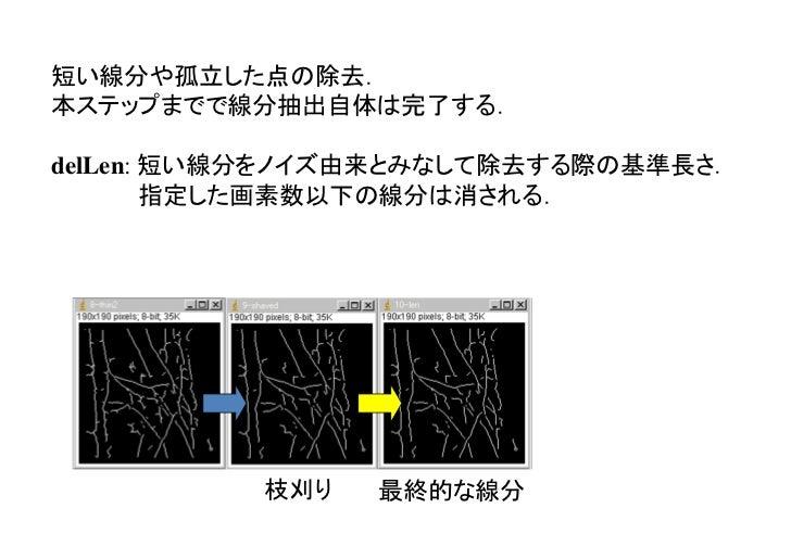 Plugins → kbi → Kbi_Filter2d → filter=lineFilters → lineExtract                                              線分抽出により,     ...
