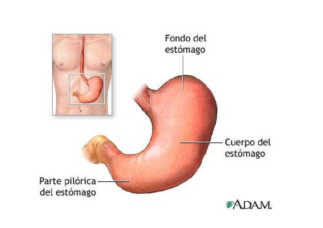 Cancer de estómago