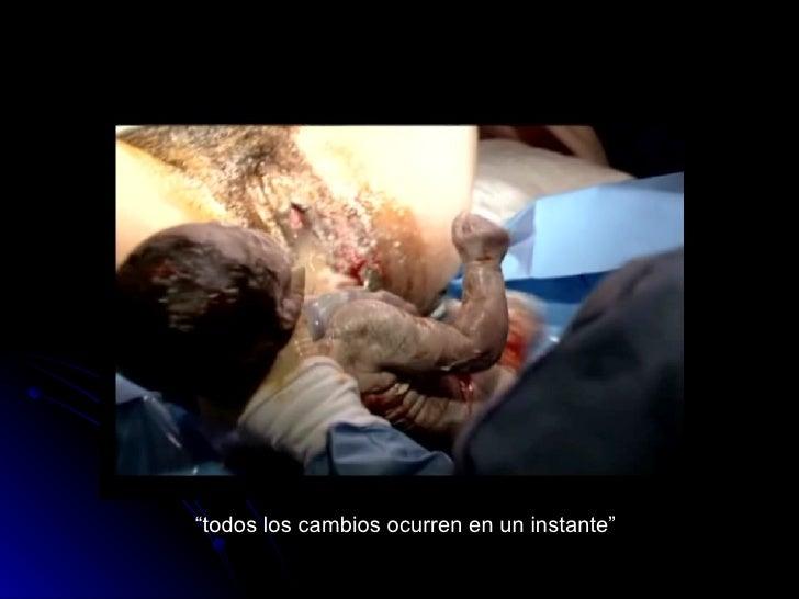 Adaptacion del recien nacido a la vida extrauterina - CICAT-SALUD