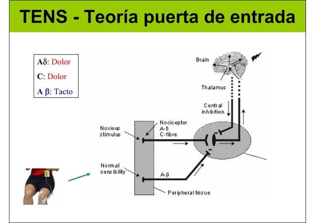 TENS - Teoría puerta de entrada Aδ: Dolor C: Dolor A β: Tacto