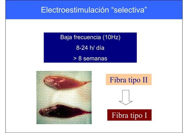 "Electroestimulación ""selectiva"" Baja frecuencia (10Hz) 8-24 h/ día > 8 semanas Fibra tipo II Fibra tipo I"