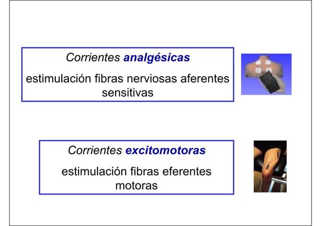 Corrientes analgésicas estimulación fibras nerviosas aferentes sensitivas Corrientes excitomotoras estimulación fibras efe...