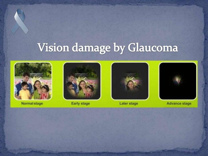 ParticipatesWorld Glaucoma Week