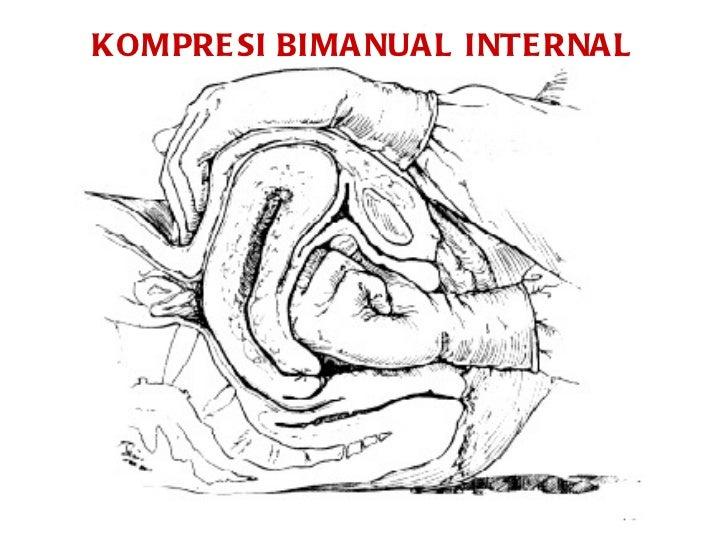 KOMPRESI BIMANUAL INTERNA EBOOK DOWNLOAD