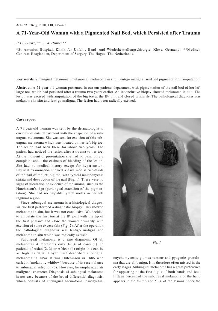 Acta Chir Belg, 2010, 110, 475-478  A 71-Year-Old Woman with a Pigmented Nail Bed, which Persisted after Trauma P. G. Jute...