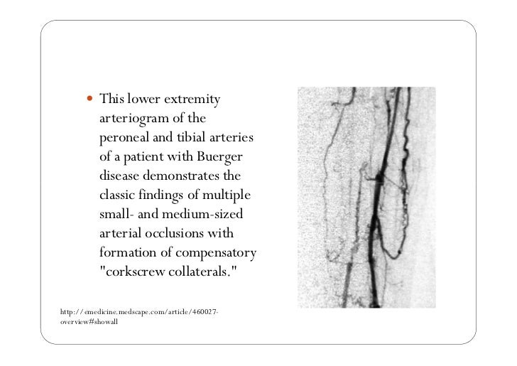 nursing care of clients with peripheral vascular disorders part 2 of …, Cephalic Vein
