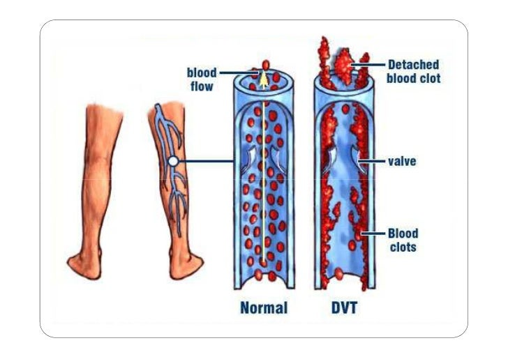 Nursing Care Of Clients With Peripheral Vascular Disorders Part 3 Of