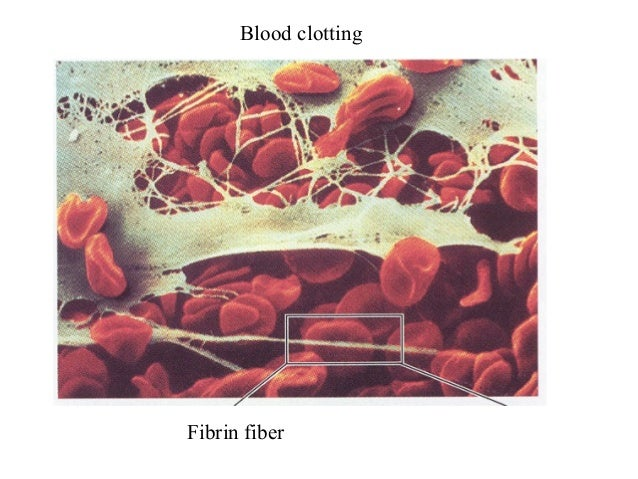 Blood clottingFibrin fiber