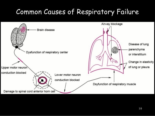 what are the causes of respiratory failure