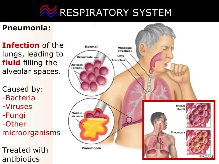 respiratory infections caused by bacteria biology essay Essay on infections the below given essay will help you to learn about the following things: 1  when these previously harmless bacteria invade other surfaces or tissues in the carrier, eg, escherichia coli derived from the bowel, where it is harmless, may cause acute suppurative infection in the urinary tract staph, aureus from the.