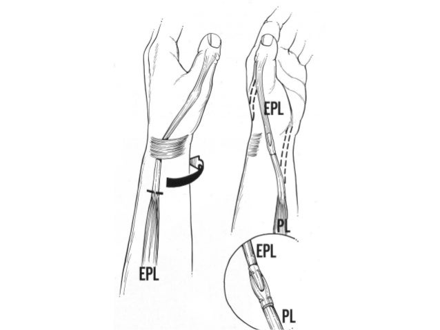 12 Tendon Transfers