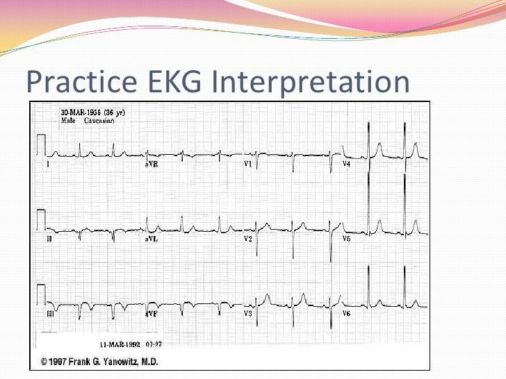12 lead ecg interpretation pdf