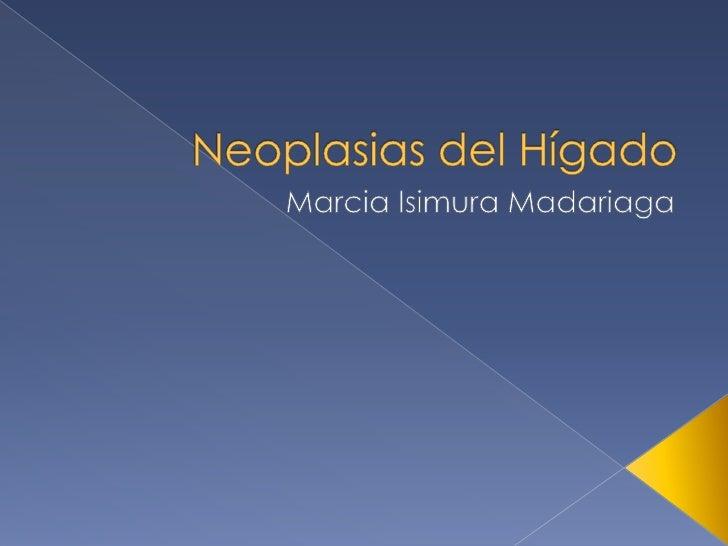 Neoplasias del Hígado<br />Marcia Isimura Madariaga<br />