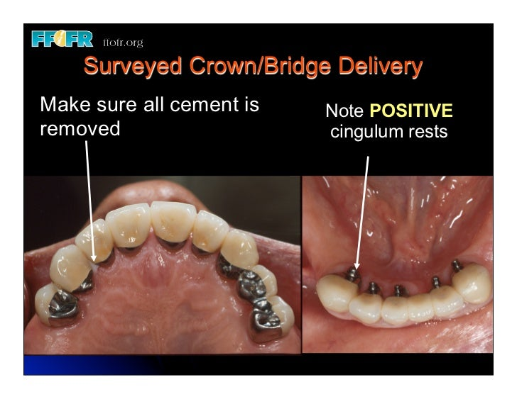 12 New Surveyed Crowns And Combined Fixed Rpd Cases
