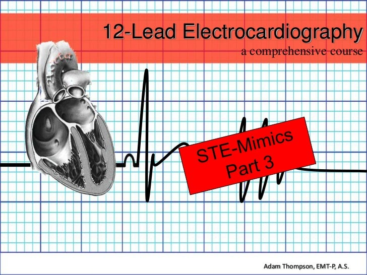 12-Lead Electrocardiography              a comprehensive course                  Adam Thompson, EMT-P, A.S.