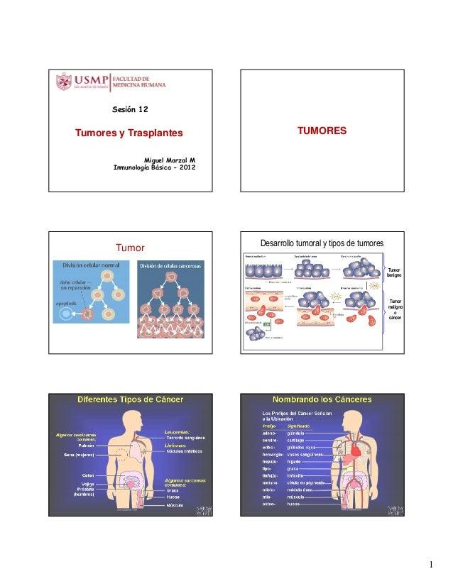 Sesión 12Tumores y Trasplantes                         TUMORES                Miguel Marzal M       Inmunología Básica - 2...
