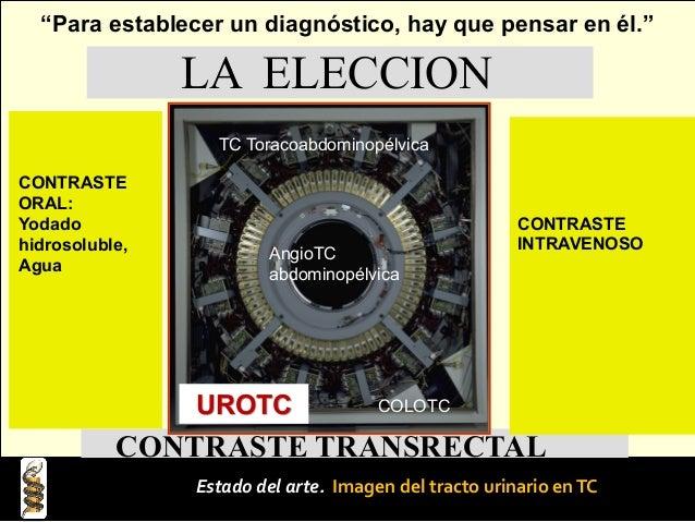 Protocolo institucional UroTomografía, UroTC Fases Simple Arterial Venosa Excretora Tardía Anales de Radiología México 200...