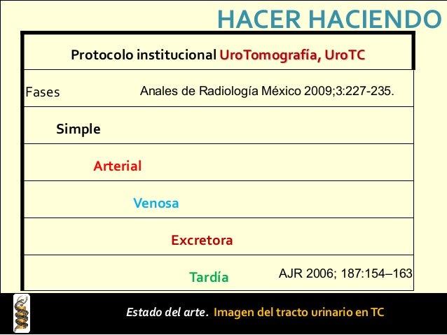 Pautas para no obviar lo esencial. üDeberá utilizarse la UroTC en prácticamente cualquier evaluación de sospecha de masa t...