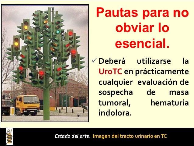 PROTOCOLO PARA LAAPLICACIÓN DE MEDIO DE CONTRASTE CON INYECTOR EN PACIENTES CON CATETER VENOSO CENTRAL CVC Tamaño de la lu...