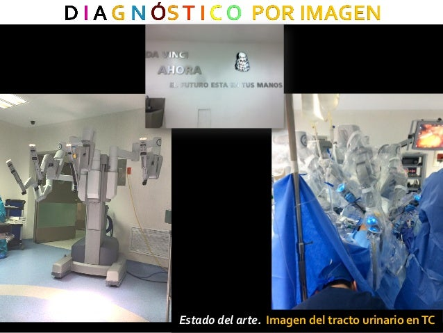 Teber D, Baumhauer M, Guven EO and Rassweiler J. Robotic and imaging in urological surgery. Current Opinion in Urology 200...
