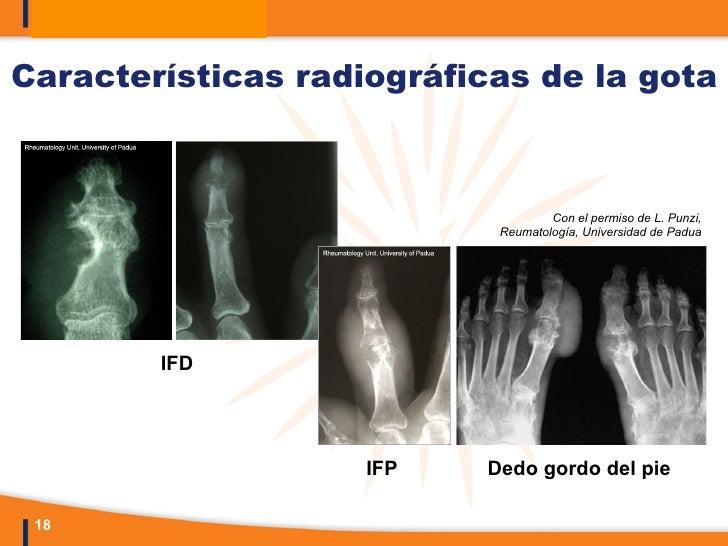La gota enfermedad pdf to word