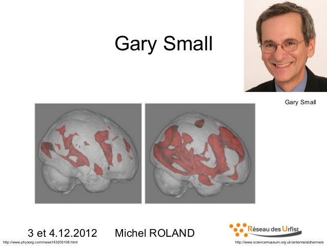 Gary Small Gary Small  3 et 4.12.2012 http://www.physorg.com/news143205108.html  Michel ROLAND http://www.sciencemuseum.or...