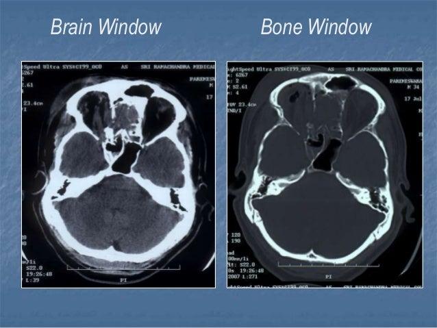 12 B Ct Brain on Ischemic Stroke