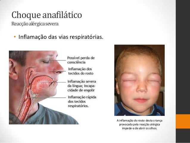 Choque anafiláticoReacçãoalérgica severa • Inflamação das vias respiratórias.                                        A inf...