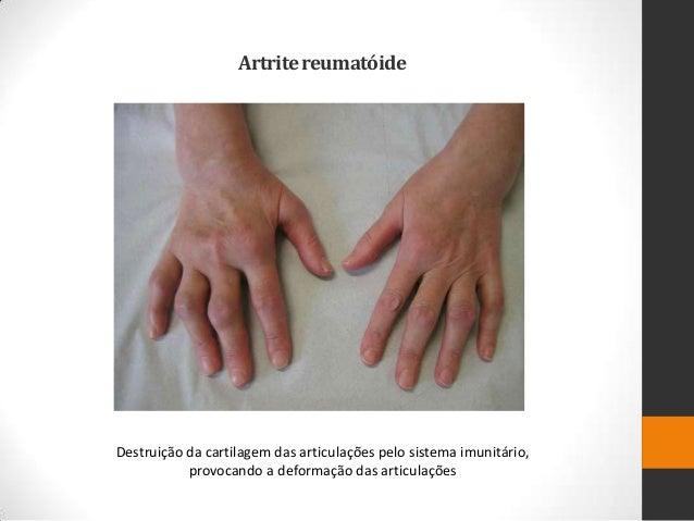 Artrite reumatóideDestruição da cartilagem das articulações pelo sistema imunitário,           provocando a deformação das...