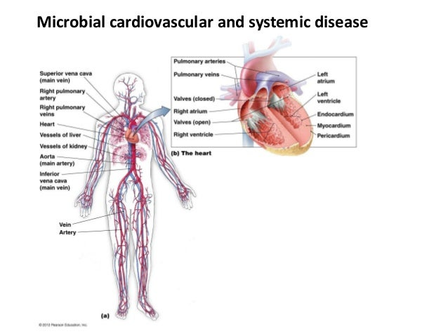 Microbial cardiovascular and systemic disease