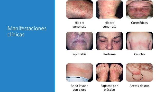 Dermatitis por contacto al rgica for Dermatitis atopica piscina cloro
