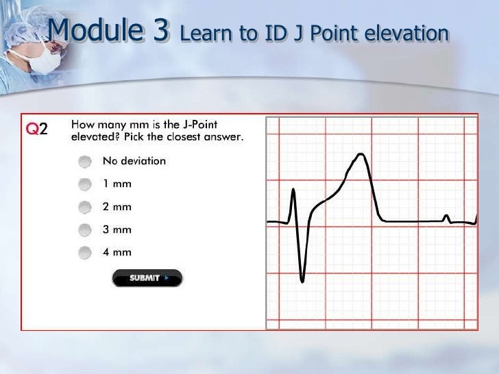 Leads Made Easy - Elevation point