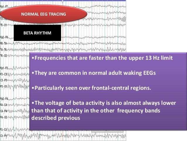 NORMAL EEG TRACING  BETA RHYTHM  •Frequencies that are faster than the upper 13 Hz limit •They are common in normal adult ...
