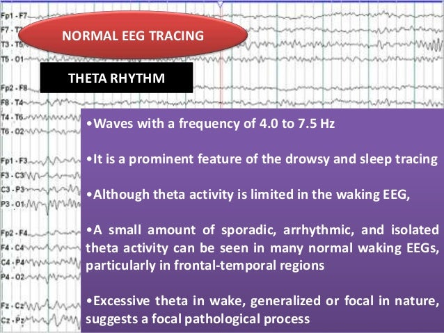 NORMAL EEG TRACING THETA RHYTHM •Waves with a frequency of 4.0 to 7.5 Hz •It is a prominent feature of the drowsy and slee...