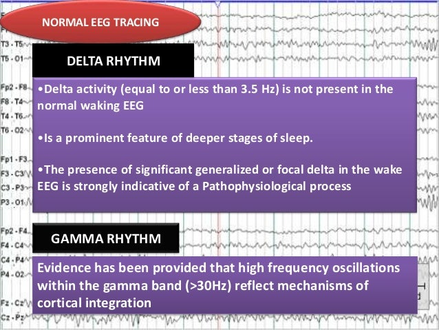NORMAL EEG TRACING NORMALRHYTHM DELTA EEG TRACING  •Delta activity (equal to or less than 3.5 Hz) is not present in the no...