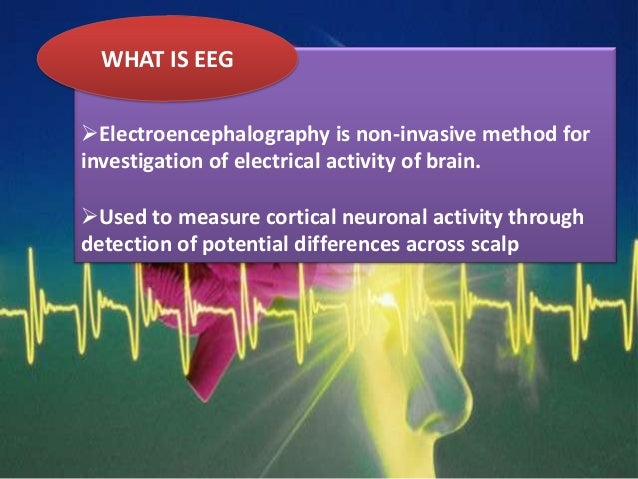 WHAT IS EEG Electroencephalography is non-invasive method for investigation of electrical activity of brain. Used to mea...