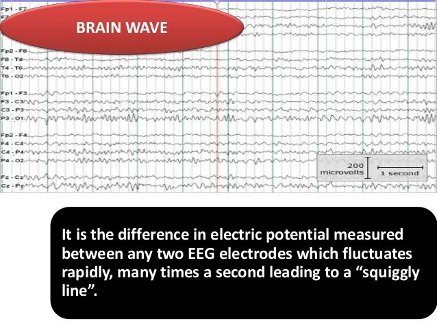 BRAIN WAVE  It is the difference in electric potential measured between any two EEG electrodes which fluctuates rapidly, m...
