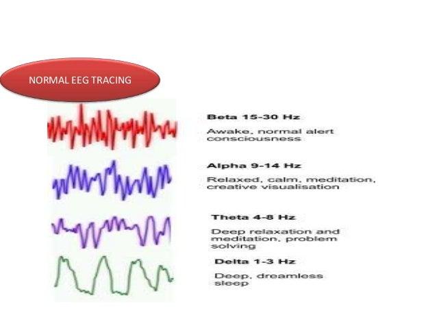 NORMAL EEG TRACING