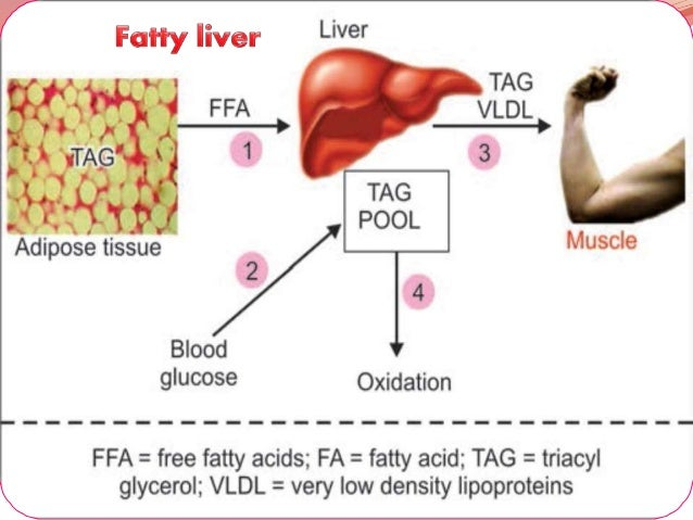 Fatty liver 7 ccuart Choice Image